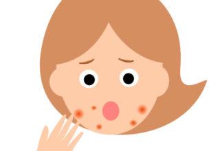ニキビ 口角 口の横のニキビの原因と治し方について!
